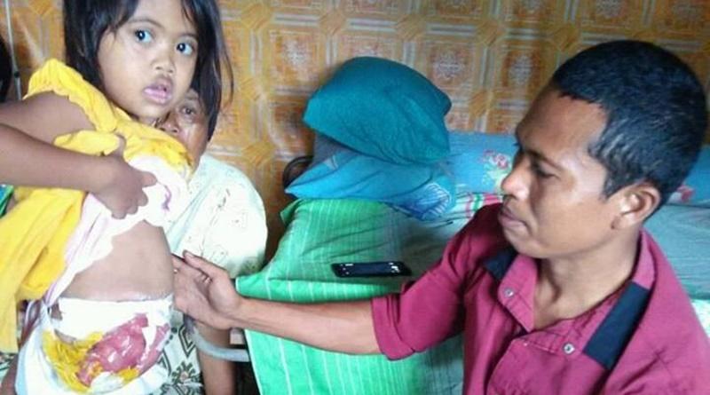 Zahra (5,3 tahun) menunjukkan ususnya yang terburai pada pegiat DCF - Cef Syafriansyah Ahd (kanan)